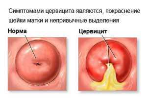 Бактериальный цервицит означает, что причиной цервицита является бактериальная инфекция чаще всего, гонорея, бактериальный вагиноз