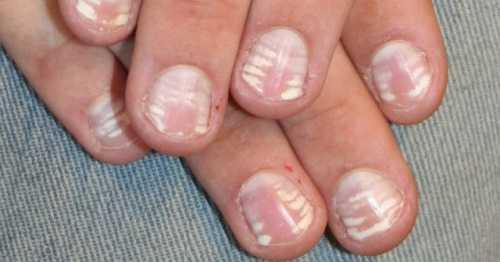 Белые пятна на ногтях пальцев рук, ног