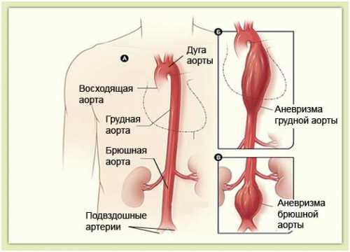 Означает он патологические изменения в некоторых органах почки, сердце, печень, мозг спинной и головной, при которых фиксируются некротиче ские и дегенеративные изменения в тканях в паренхиме без экссудации и пролиферации