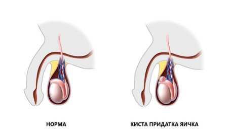 Патологические изменения репродуктивной системы, которые влекут за собой кисту может развиваться на фоне иных заболеваний