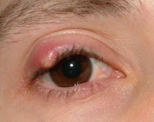 Лечение ячменя на глазу в домашних условиях, что