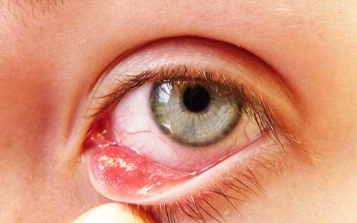 Применение данного рецепта требует осторожности, необходимо внимательно следить, чтобы уксус не попадал в глаза