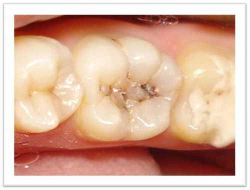 Цель такой чистки убрать между зубов застрявшие кусочки пищи