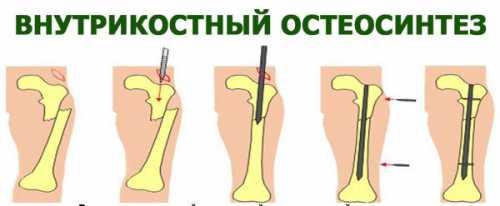 Остеосинтез бедра