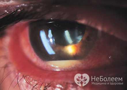 У пациентов с иридоцик литом появляется слезотечение, светобоязнь, перед глазами появление тумана, незначительное в районе строчек ухудшение остроты зрения
