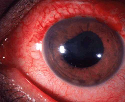 Вероятно, проявление перикорнеальной инъекции сосудов глазного яблока, выраженного умеренного роговичного синдрома
