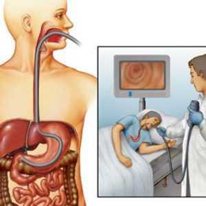 При лечении язвы желудка эффективны средства, оказывающие одновременно два действия антисептическое и ранозаживляющее